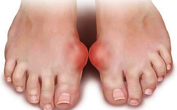 Kham benh gout