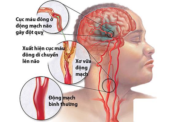 Phương Pháp Mới điều Trị Tai Biến Mạch Máu Não
