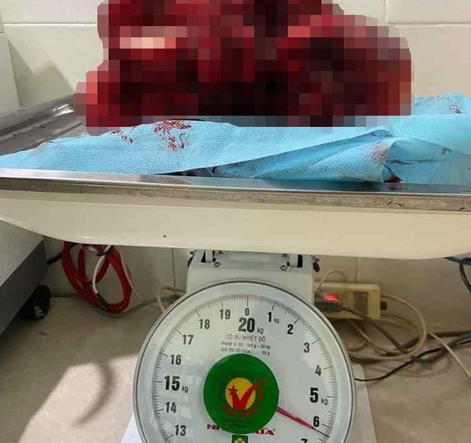 Phẫu Thuật Thành Công Cắt Bỏ Khối U Nặng Hơn 6kg Cho Một Thai Phụ