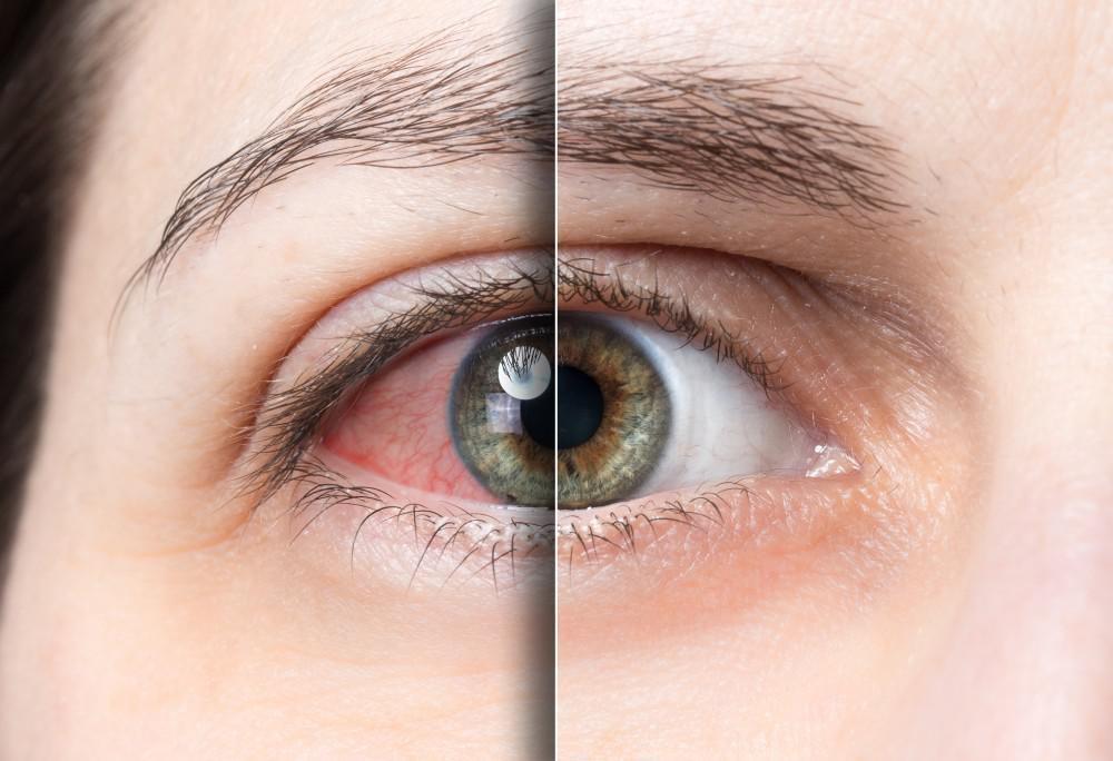 Nguyên Nhân Và Cách Xử Trí Khi Bị Khô Mắt